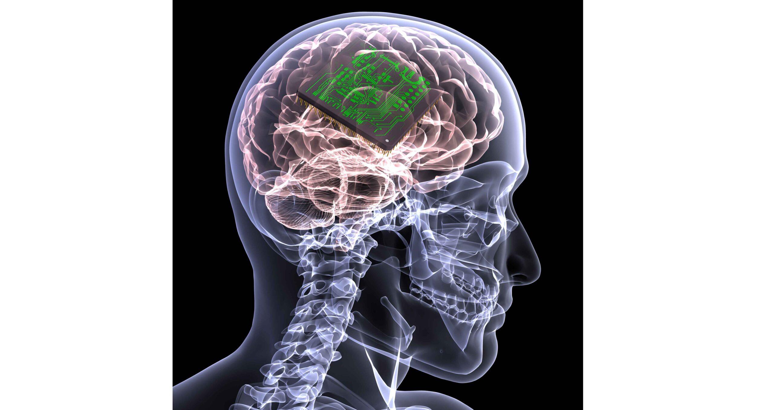 Forsøgsdyrenes-Værn-Hjernechip-testes-på-dyr